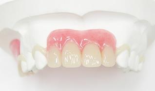 白い歯(詰め物 被せ物)